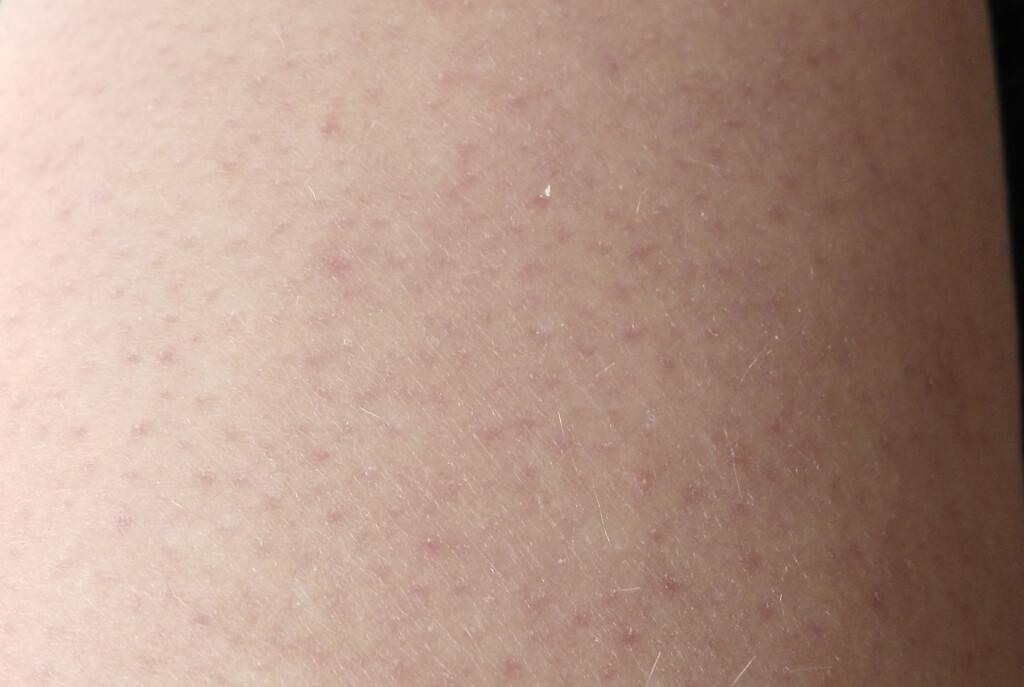 Reibeisenhaut | Keratosis pilaris | Follikelkeratosen