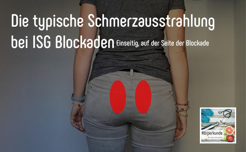Symptome ISG Blockade
