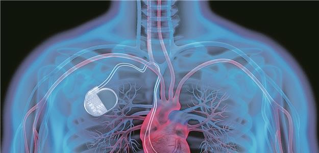 Wertschätzung: Werde zum Herzschrittmacher in der Organisation!