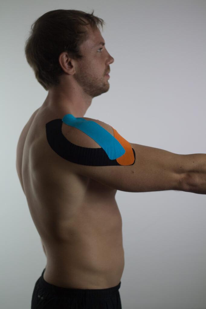 Kinesio Tape kann effektiv bei Beschwerden der Schulter angewendet werden.
