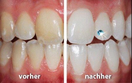 Bleaching für Strahlende Zähne
