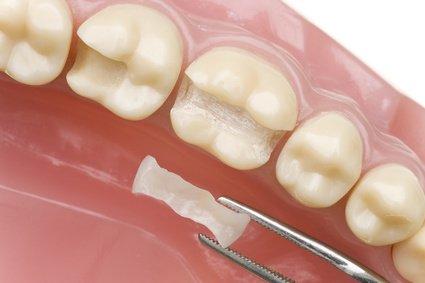 Zahnarzt DrGraf Straubing Fuellung