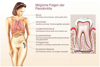 Parodontose, eine Bakterielle Erkrankung.