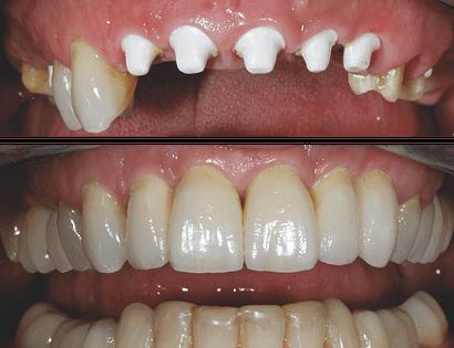Beschreibung eines Zahnimplantats.