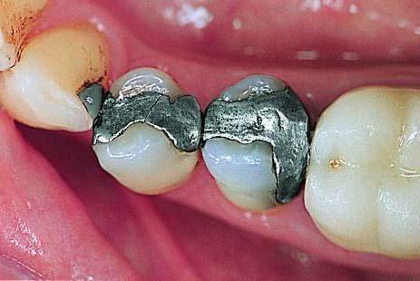 Zahnarzt DrGraf Straubing Amalgam neu1