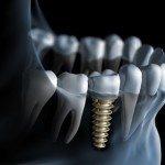 Keramik Implantat - Bild