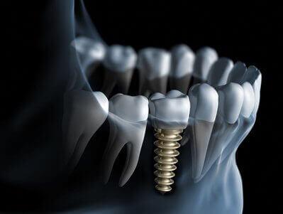 Beitragsbild Bei Zahnverlust: Sofort-Implantat aus Vollkeramik