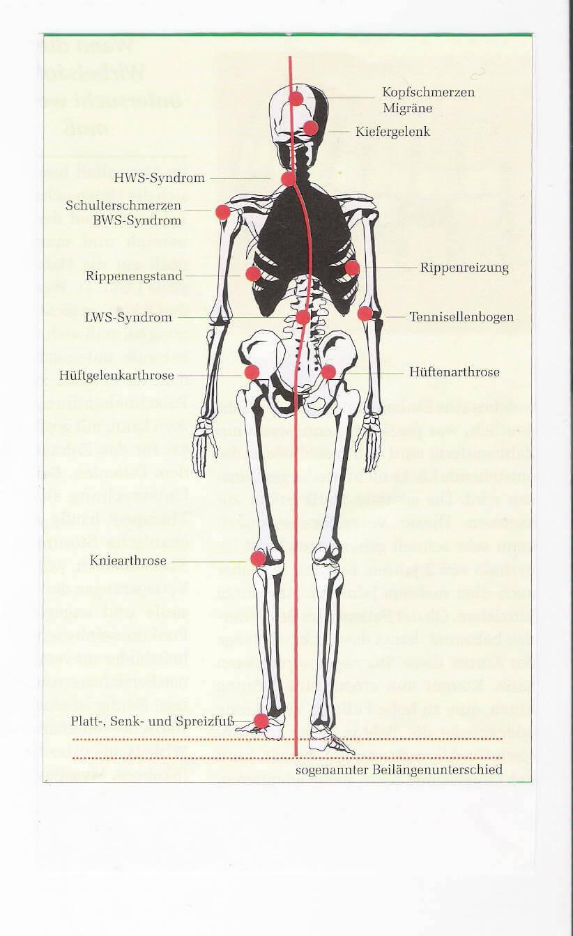 muskuläre Verspannung