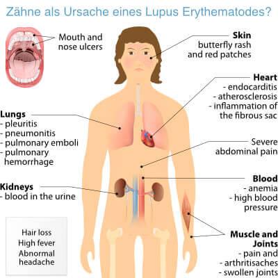 Beitragsbild Lupus Erythematodes: Zähne als Ursache?