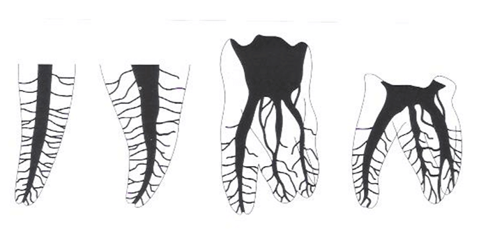 Rheuma und wurzelbehandelte Zähne - Bild