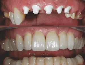 Zahnimplantate aus Vollkeramik